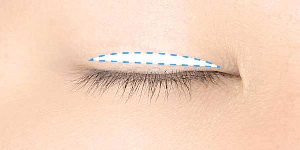 奥二重の癖付けは目尻側を上げるようにアイテープを付ける