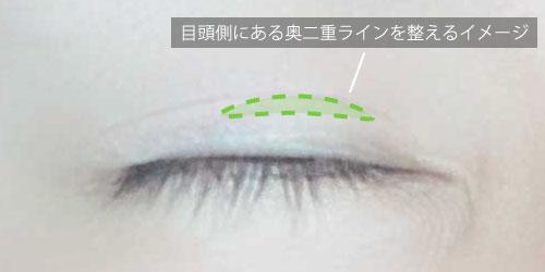 並行二重はやや目頭側にアイテープを貼る